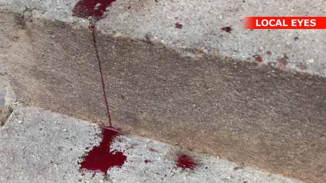 Mor tappede blod fra søn
